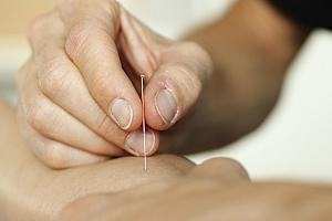 Ortis Dry needling